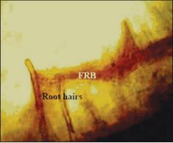 Εικ. 5. Μυκητο-ριζοβιακό βιοφίλμ (ΜΡΒ) ρίζας σίτου.